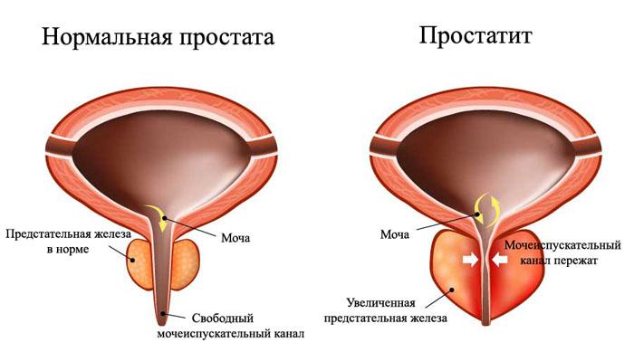 Чеснок для потенции мужчин: как влияет на здоровье и чем